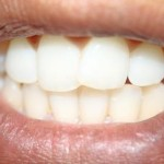 5 Foods To Eat For Healthier And Stronger Teeth