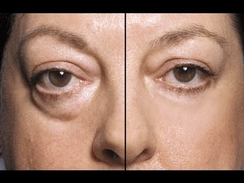 home-remedies-for-treating-eye-bags