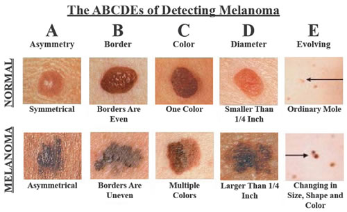 recognize-skin-cancer-the-following-photos-might-save-your-life1