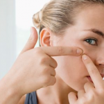 Why You Can't Stop Picking Your Skin Or Hangnails, Or Pimples