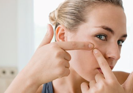 Picking-pimples-707152