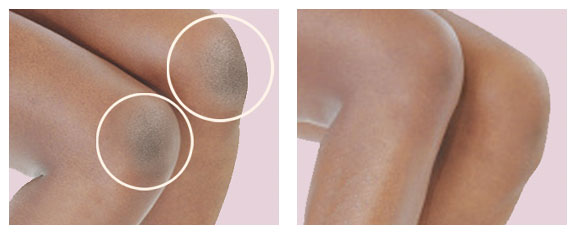 dr-hydro-bna-knee-elbow