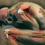 Top 7 Foods that People Who Suffer From Chronic Pain Should Avoid