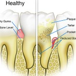 Remedies To Remove Tartar And Plaque Build Up On Teeth