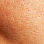Best Ways To Reduce Your Pores