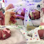 These Babies Just Made History For One INCREDIBLE Reason – This Story Will Leave You Stunned