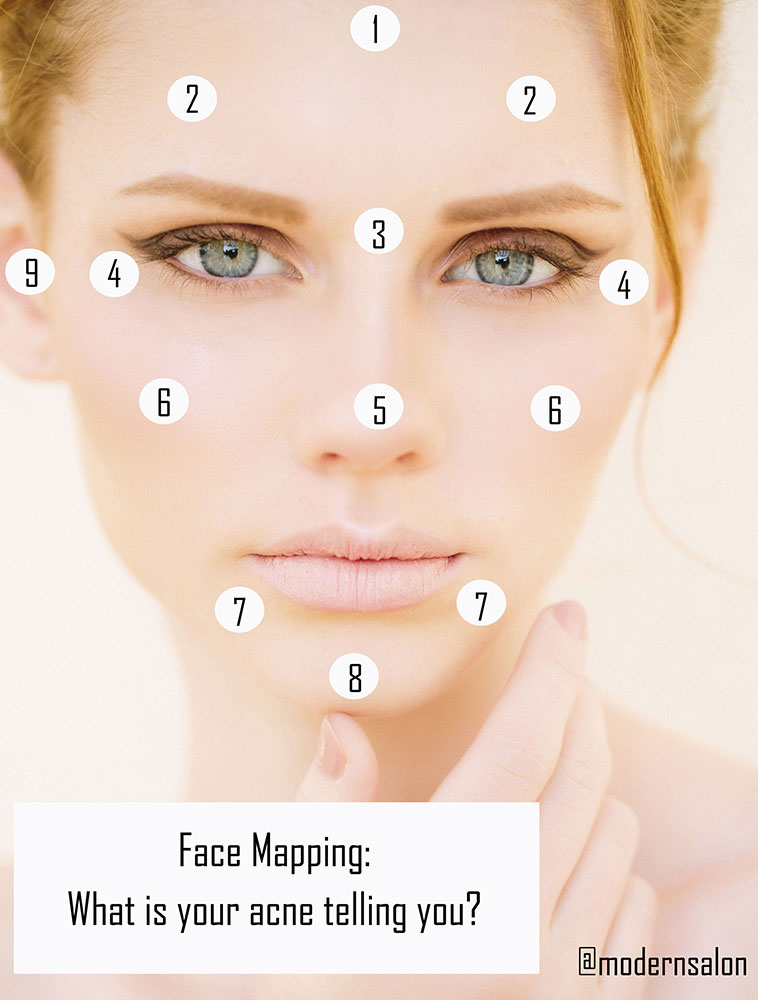 Face-Mapping-Acne