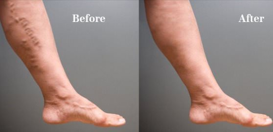Home-Remedies-to-Get-Rid-of-Spider-Veins-Naturally
