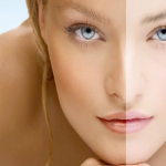 Top 5 Homemade Skin Lightening Remedies You Must Try