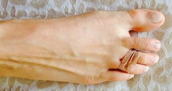 VIDEO-She-puts-a-rubber-band-around-two-toes-every-day