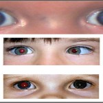If You See This In Your Child's Eye Act Immediately Because It Might Be Too Late