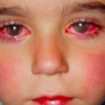 Burn Injury To The Eyes: One Little Boy Lost His Sight Because of This Toy That You Probably Have at Home