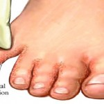 Say Goodbye to Fungal Infections: Soak Your Feet In