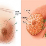 The Causes of Breast Cancer