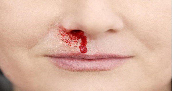 What-Does-a-Sudden-Nosebleed-Mean