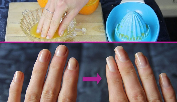she-was-soaking-her-finger-in-this-mixture-for-two-weeks-you-will-not-believe-what-happened