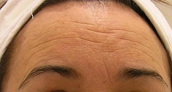 GET-RID-OF-THE-WRINKLES-IN-JUST-SEVEN-DAYS-MAKE-A-HOMEMADE-CREAM-THAT-IS-GOING-TO-MAKE-YOU-YOUNGER