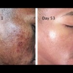 Get Rid Of The Stains, Spots, And Hyperpigmentation With This Natural Recipe With 2 Ingredients