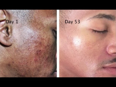 Get-Rid-Of-The-Stains-Spots-And-Hyperpigmentation