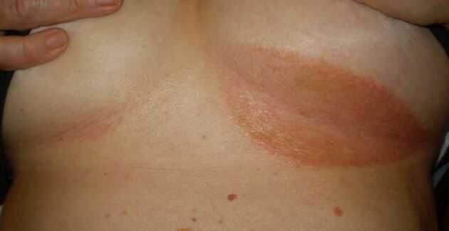 Home-Remedies-and-Tips-for-Breast-Infection1