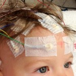 Dad Uses Cannabis Oil To Treat Three Year Old Epileptic Daughter