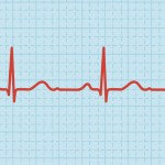 How to Slow Down Your Racing Heartbeat When Feeling Anxious