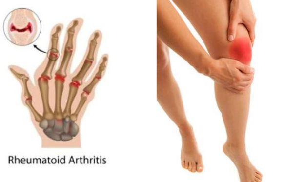 Arthritis-and-Joint-Pain