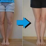 Bow Legs: What Causes This Condition and How To Straighten Without Surgery