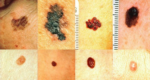 How-To-Recognize-Skin-Cancer-–-This-Could-Save-Your-Life