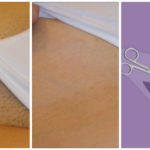 Remove Unwanted Hair Forever In Intimate Parts With This One Ingredient