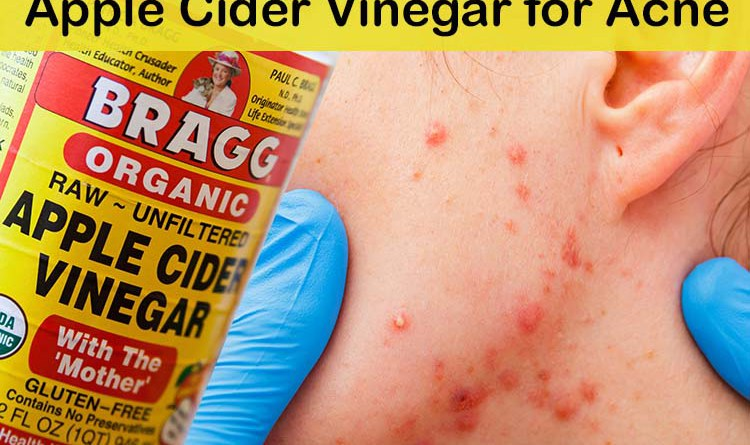 apple-cider-vinegar-for-acne-folk-remedy-actually-works-better-than-chemicals1