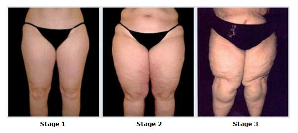 lipedema-stages