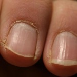 IF YOU SEE THIS ON YOUR NAILS IMMEDIATELY VISIT A DOCTOR