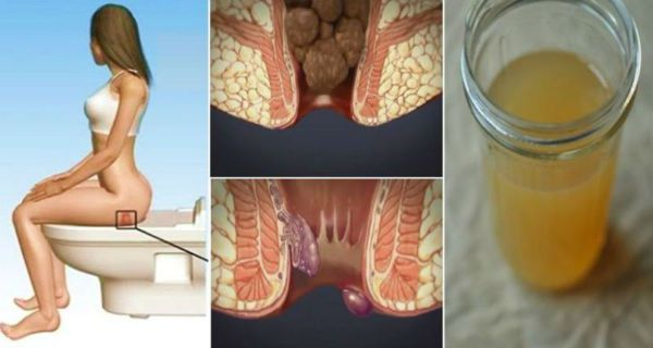 Treating-Hemorrhoids-at-Home-With-One-Ingredient-From-Your-Kitchen-You-Will-be-Cured-in-24-Hours-