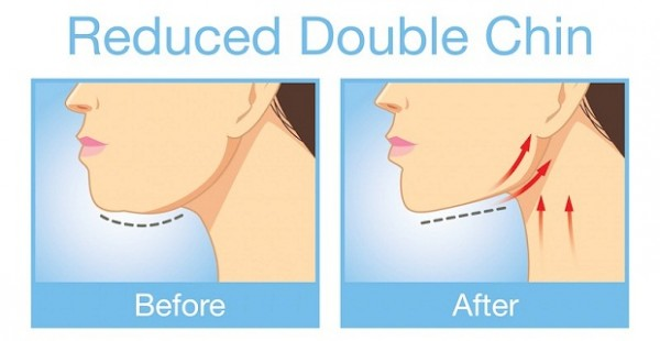 You-Need-to-do-These-Exercise-for-Removing-the-Unwanted-Double-Chin-and-Neck-Fat-600x310