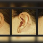 What Does Your Ear Lobe Reveal About Your Personality?