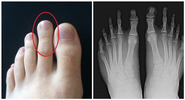 Look-at-Your-Long-Toe.-If-It-Is-This-Size-Then-You-Are-Very-Special-Here's-Why…