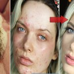 Mix These 2 Ingredients And See What Happens To Your Skin After Several Minutes