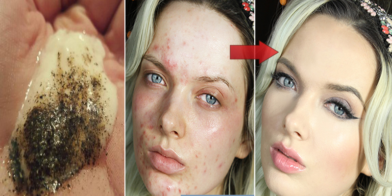 Mix-These-2-Ingredients-and-See-What-Happens-To-Your-Skin-After-Several-Minutes
