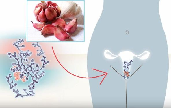 Natural-Cure-That-Eliminates-Yeast-Infection-with-Only-1-Ingredient