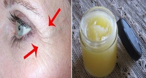 She-Removed-All-Wrinkles-Using-This-Homemade-Cream-Only-For-1-Week-Recipe--300x160