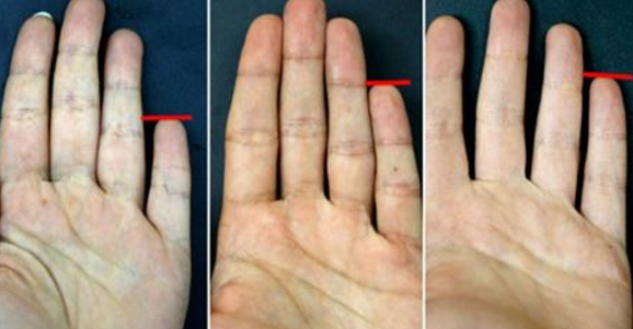 Your-little-finger-reveals-what-a-person-you-are
