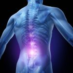 How To Treat Herniated Disc All Naturally