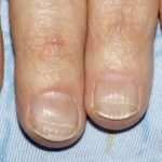The Lines On Your Nails Mean A Lot For Your Health, But It Depends On Their Direction
