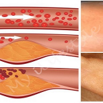 4 Warning Signs You May Have Clogged Arteries And How To Unclog Them The Natural Way