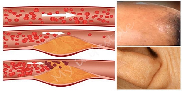 4-Warning-Signs-You-May-Have-Clogged-Arteries-and-How-to-Unclog-Them-The-Natural-Way