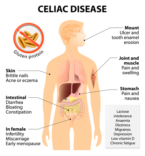Coeliac disease or celiac disease or celiac sprue. Signs and Symptoms. Human silhouette with highlighted internal organs