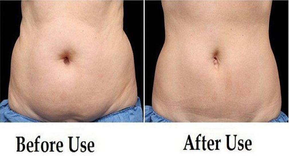 Drink-This-Beverage-Every-Morning-on-an-Empty-Stomach-and-Say-Goodbye-to-Belly-Fat