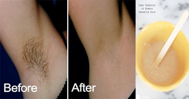 Removing-Underarm-Hairs-In-Just-2-Minutes