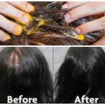 With This Recipe Of Just 3 Ingredients Your Hair Will Stop Falling And Begin To Grow Like Crazy